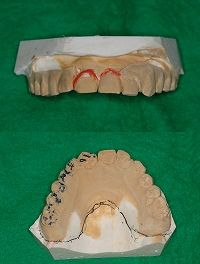 1つの義歯を長く使う